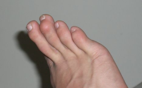 Why do people get hammertoes